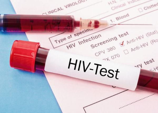 Thử máu là cách duy nhất kiểm tra HIV
