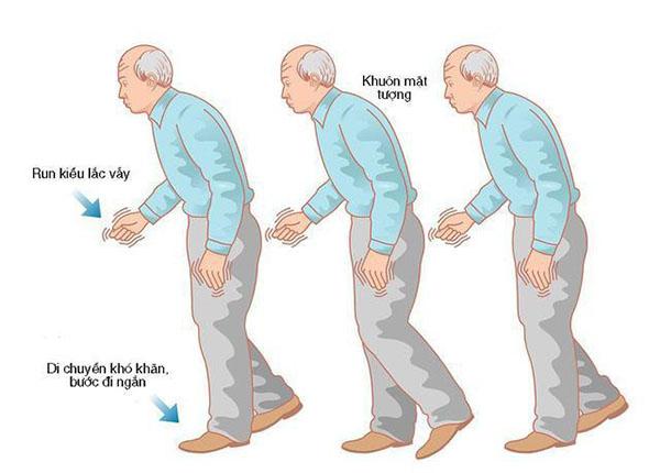 Liệu chữa bệnh Parkinson bằng Đông y có thực sự hiệu quả?