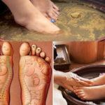 Trị đau gót chân hiệu quả bằng các bài thuốc y học cổ truyền