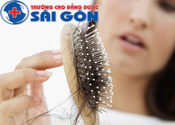Bất ngờ với bài thuốc y học cổ truyền trị rụng tóc hiệu quả