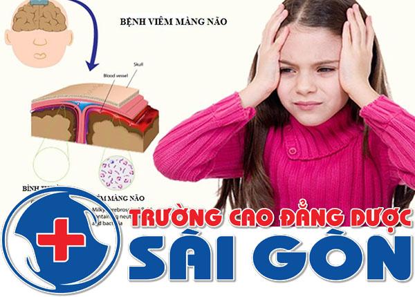 Nguyên nhân và cách điều trị bệnh viêm màng não ở trẻ